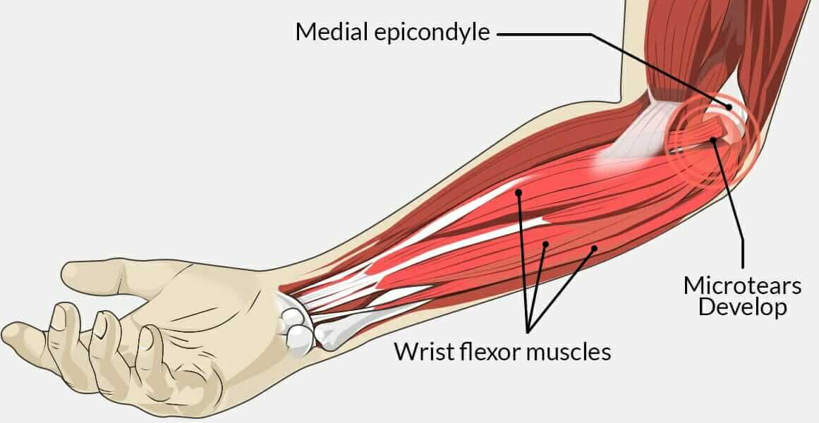 Illustration of the forearm flexor muscles and golfer's elbow medial epicondylitis