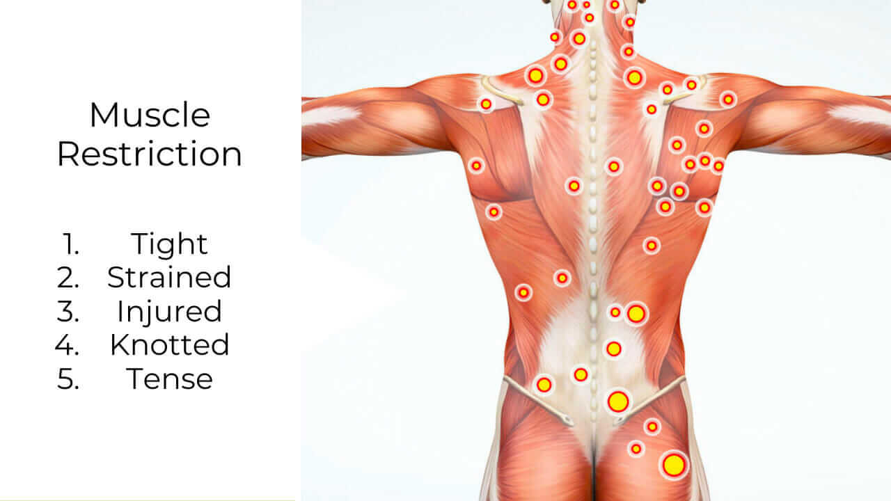 Illustration of knotted trigger points muscles, musculoskeletal pain in human muscle anatomy