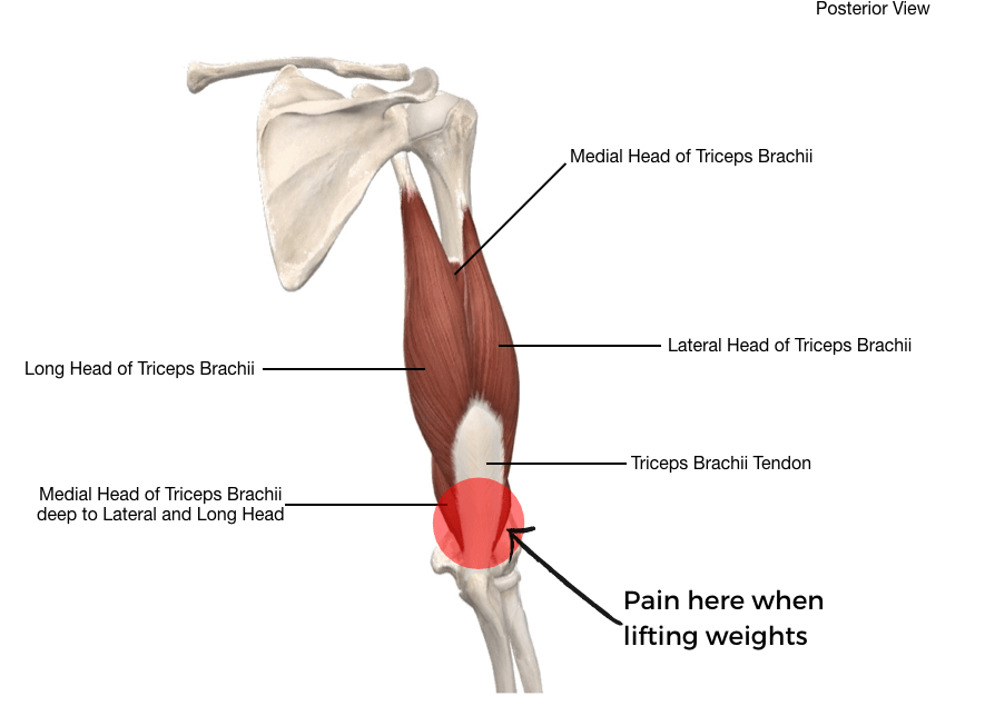 Illustration of posterior elbow pain, tricep tendonitis. Muscles of triceps and triceps brachii tendon